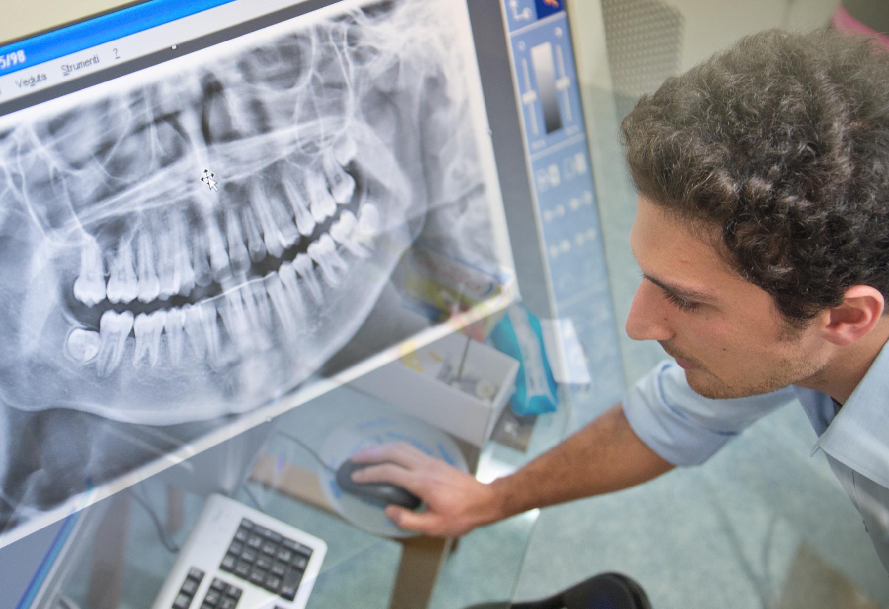 Il Dott. Marco Montalbano mentre opera presso il nostro studio ortodontico in centro a Padova - Centro di Ortodonzia Bavaresco