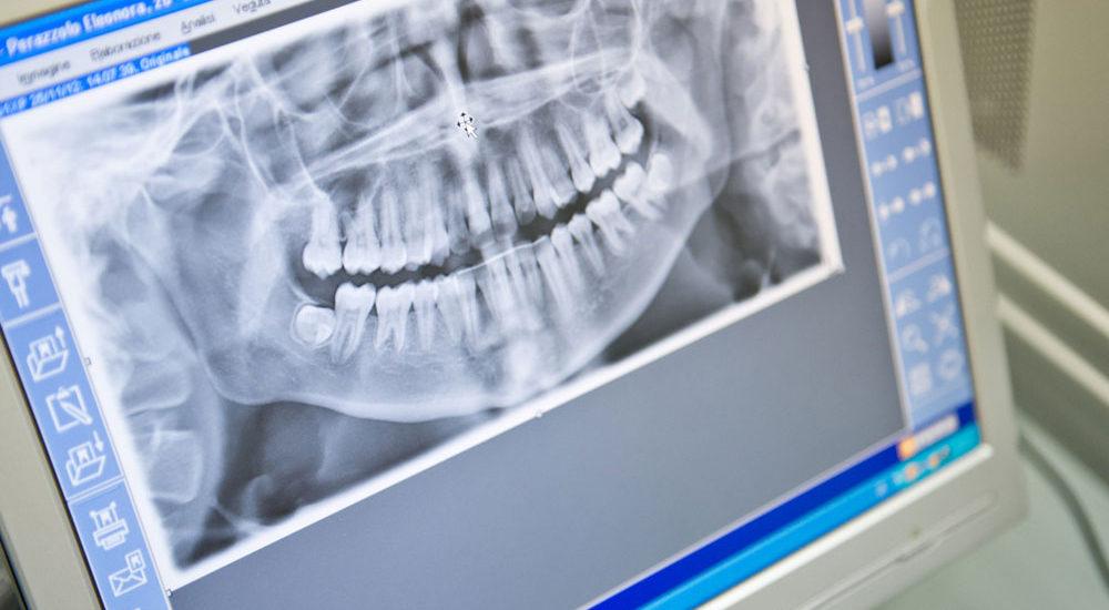 Chirurgia Maxillo-facciale a Padova - Servizi di ortodonzia per bambini e adulti a Padova - Studio ortodontico Dott. Bavaresco