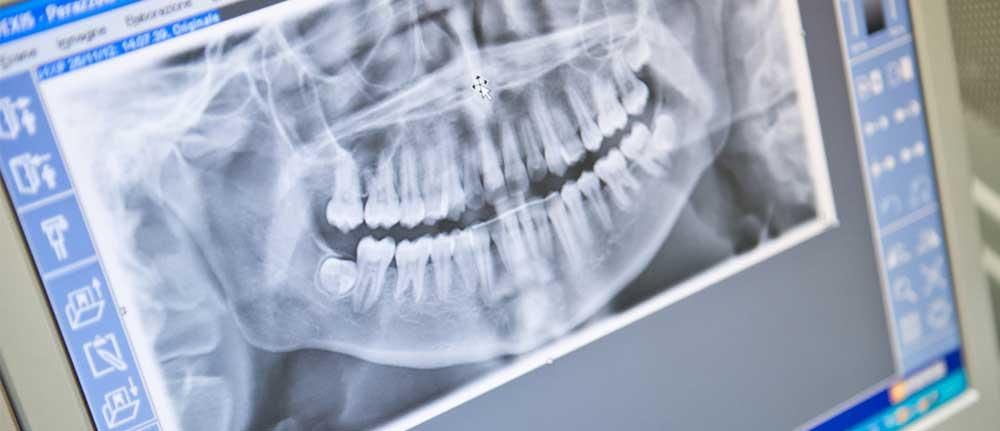 Una fase delle visite ortodontiche su bambini e adulti che vengono eseguite presso il nostro studio odontoiatrico di Padova
