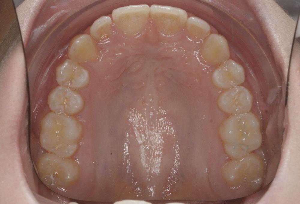 Trattamenti ortodontici adolescente - Canino incluso prima e dopo - Post trattamento - CENTRO ORTODONZIA BAVARESCO