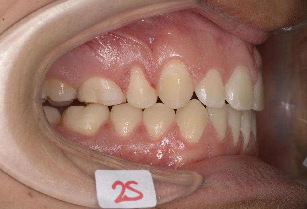 Trattamenti ortodontici adolescente - Denti sporgenti - Post trattamento - CENTRO ORTODONZIA BAVARESCO