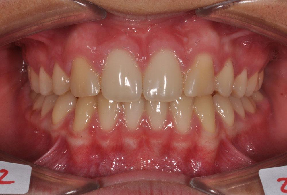 Trattamenti ortodontici adolescente - Agenesie dentarie - Post trattamento - CENTRO ORTODONZIA BAVARESCO
