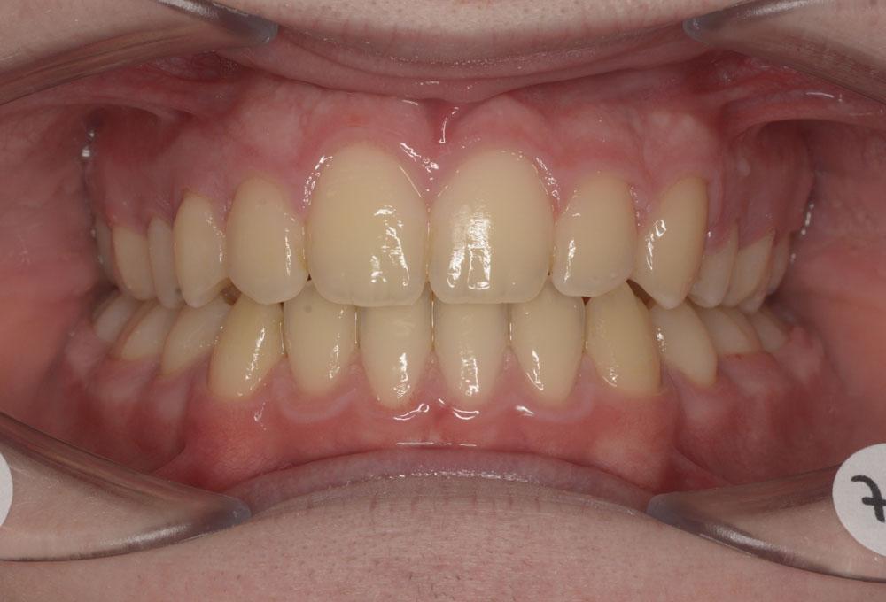 Trattamenti ortodontici adolescente - Affollamento dentale - Post trattamento - CENTRO ORTODONZIA BAVARESCO
