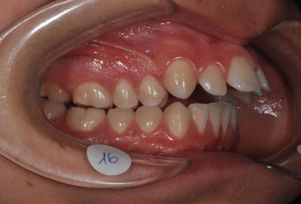 Trattamenti ortodontici adolescente - Agenesie dentarie - Pre trattamento - CENTRO ORTODONZIA BAVARESCO