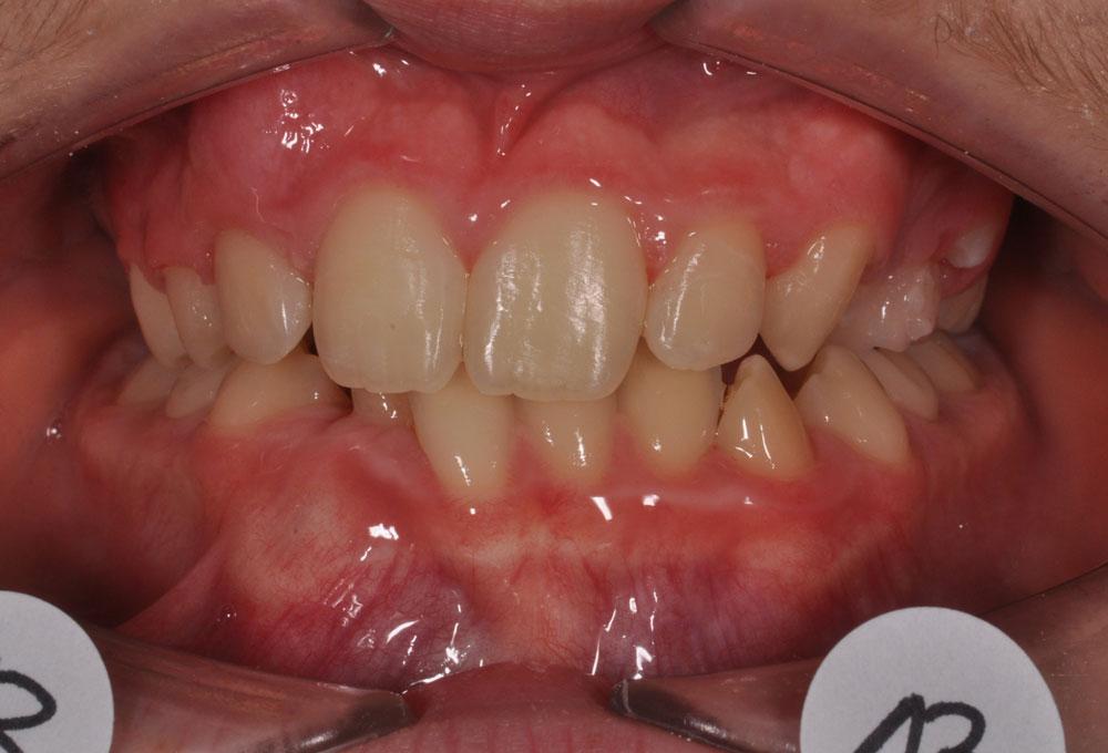 Trattamenti ortodontici adolescente - Affollamento dentale - Pre trattamento - CENTRO ORTODONZIA BAVARESCO