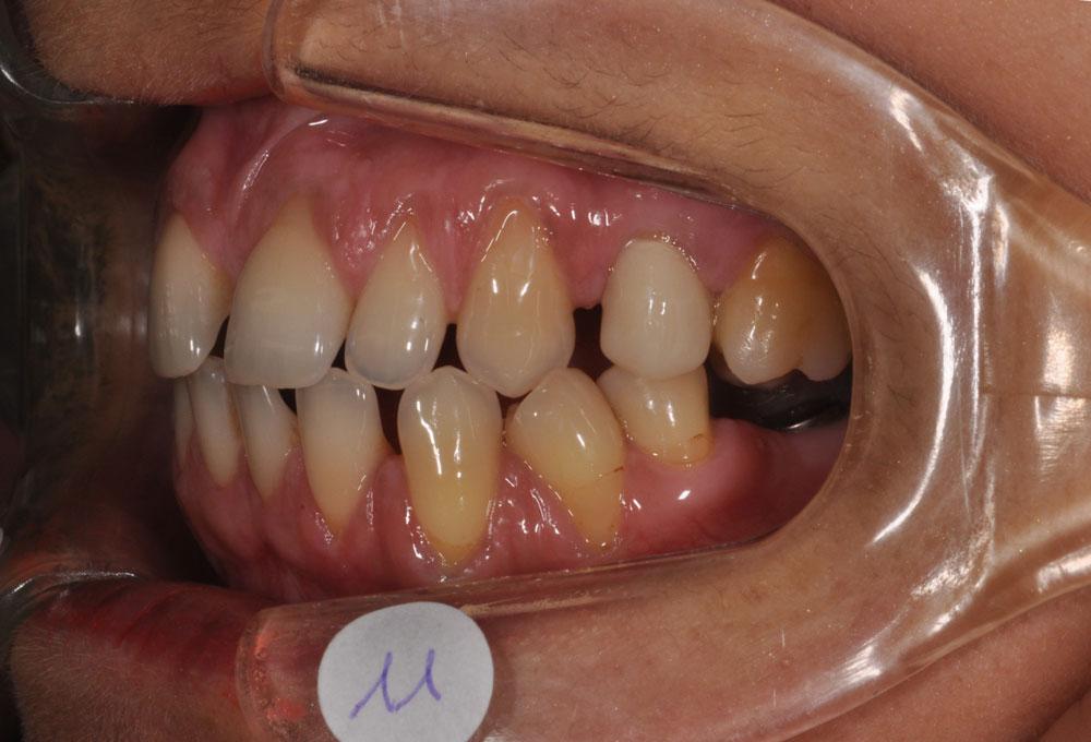 Ortodonzia preprotesica a Padova - Ortodonzia multidisciplinare - CENTRO ORTODONZIA BAVARESCO