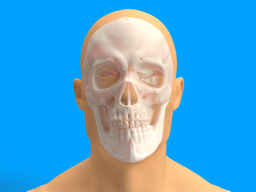 Chirurgia Maxillo-Facciale Ortognatica - Asimmetrie facciali - CENTRO ORTODONZIA BAVARESCO