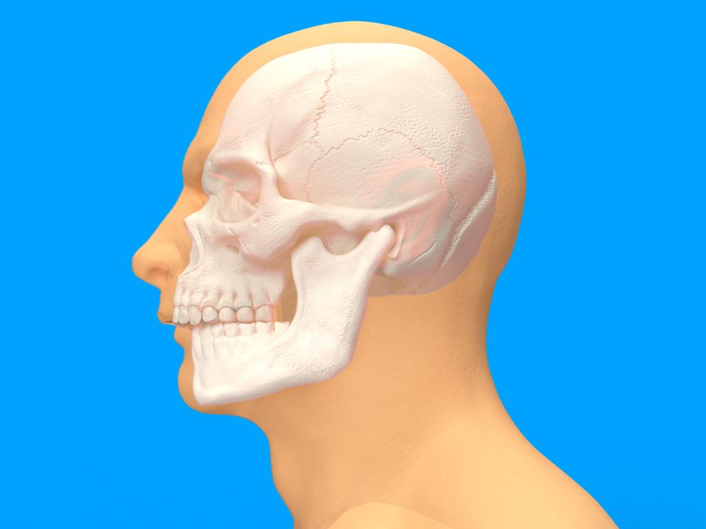 Chirurgia Maxillo-Facciale Ortognatica - Retroposizione mandibolare - CENTRO ORTODONZIA BAVARESCO