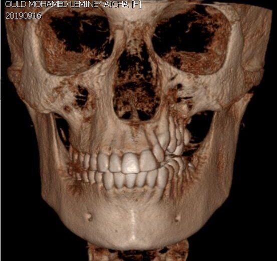 Chirurgia Maxillo-Facciale Ortognatica - Malformazioni dento-scheletriche - CENTRO ORTODONZIA BAVARESCO